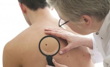 HEALTH Skin Cancer 093874