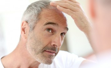 Senior man and hair loss issue