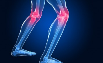 3d rendered illustration of skeletal knees with painful joints